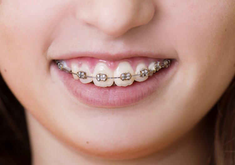 Orthodontic braces for children